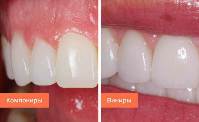 Компониры на передние зубы