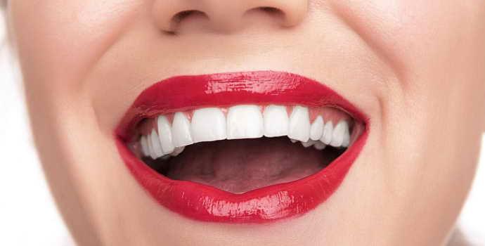 Фарфоровые виниры на зубы цена, отзывы, фото до и после