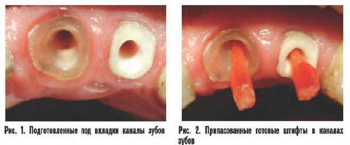 Процесс установки вкладки на зуб под коронку