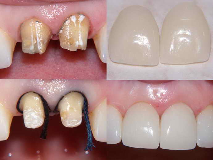 Для чего устанавливается вкладка на зуб под коронку