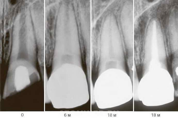 Восстановление зуба путем установки внутренней вкладки невозможно
