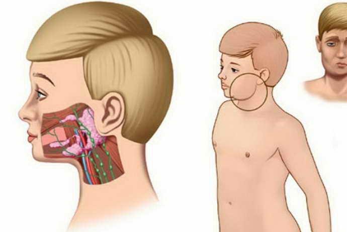 Симптоматика и лечение воспаления околоушной железы