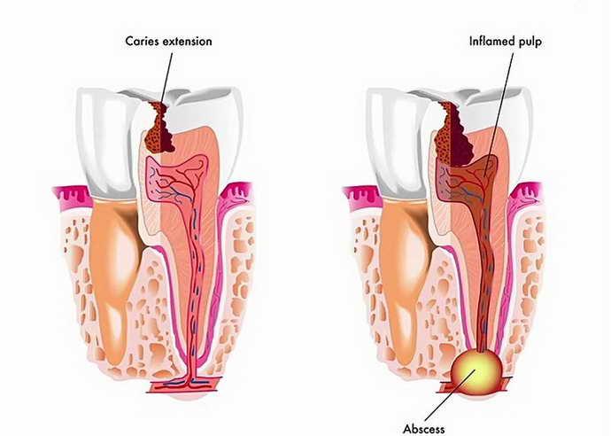 абсцесс сопровождается воспалением и опухлостью