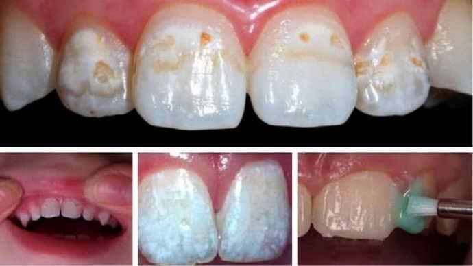 Методы регенерации зубной эмали при незначительных дефектах