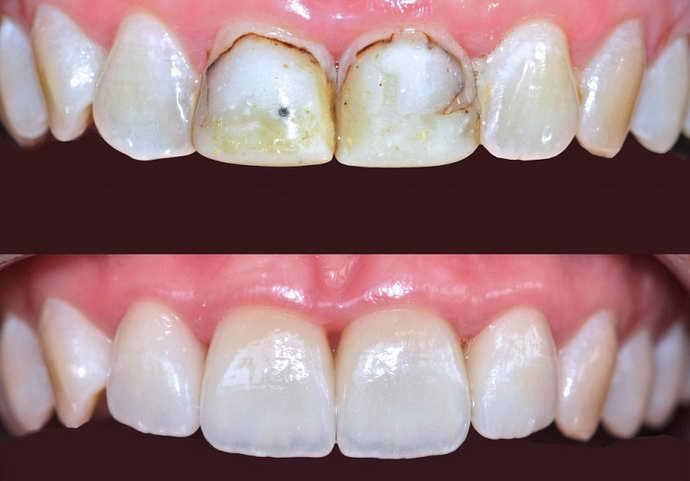Использование композитных материалов и восстановление зубной эмали