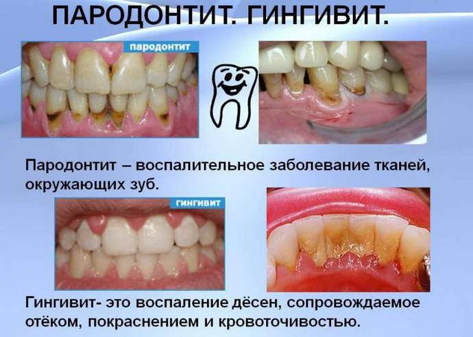 Причины запаха между зубовв и способы их устранения