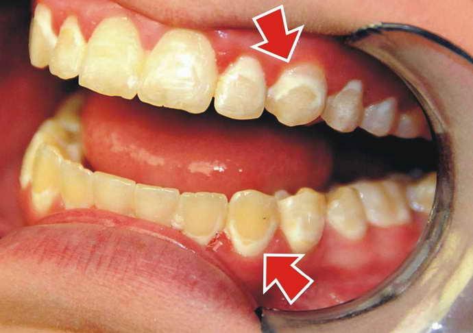 Отложения на зубах и запах