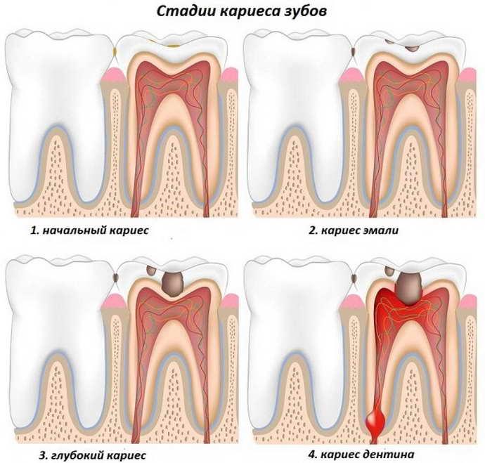 Острая стадия кариеса и запах между зубами