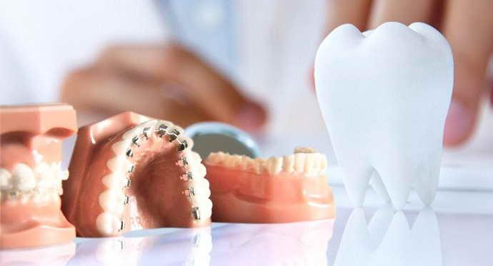Системы протезирования как причина запаха между зубами