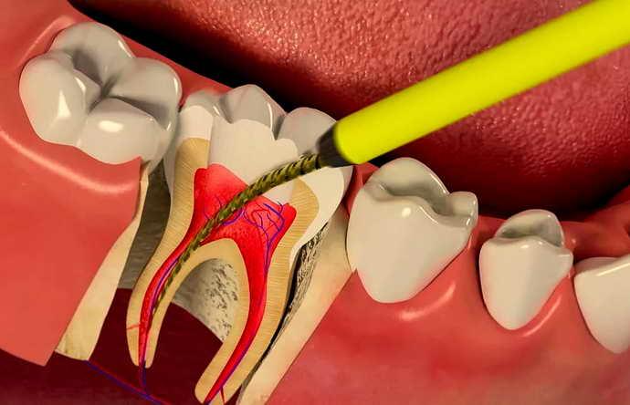 Боль зуба после депульпирования