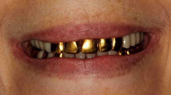 Когда врачи советуют ставить золотые коронки