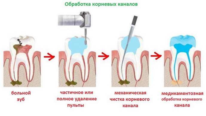 зуб болит под пломбой от пульпы