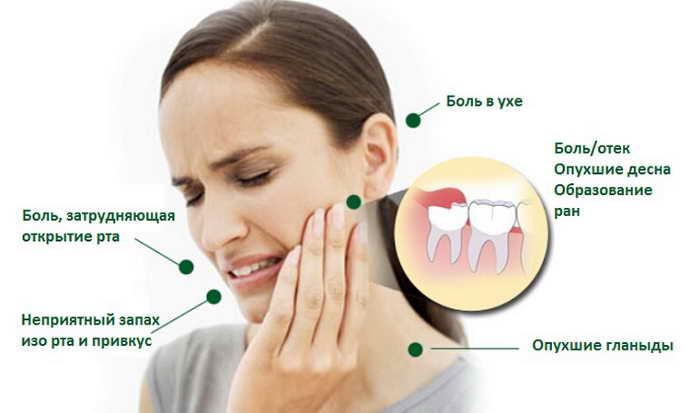 Причины боли при росте зубов мудрости