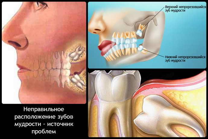 Характерные симптомы и осложнения при росте зубов мудрости