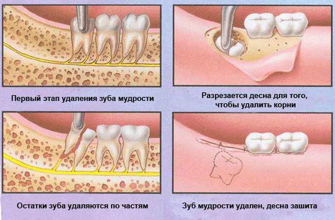 Почему стоматологи не лечат зубы мудрости