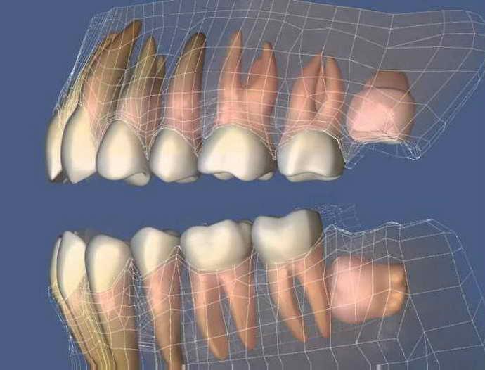 длительность прорезывания зуба мудрости