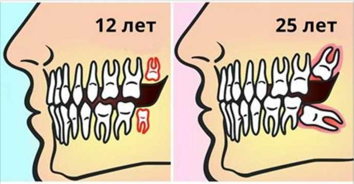 Когда режутся зубы мудрости