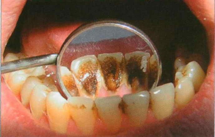 Что представляет собой зубной налет
