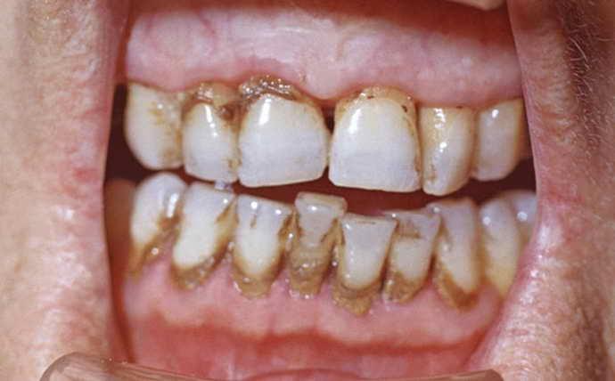 Чем опасно наличие зубного камня