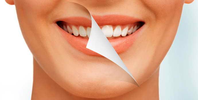 Борьба с зубным камнем