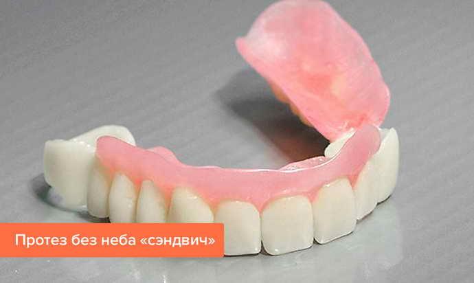 как выглядит зубной протез сэндвич