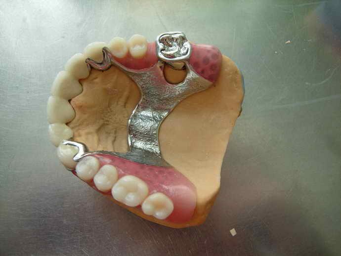 Шинирующие конструкции для зубов