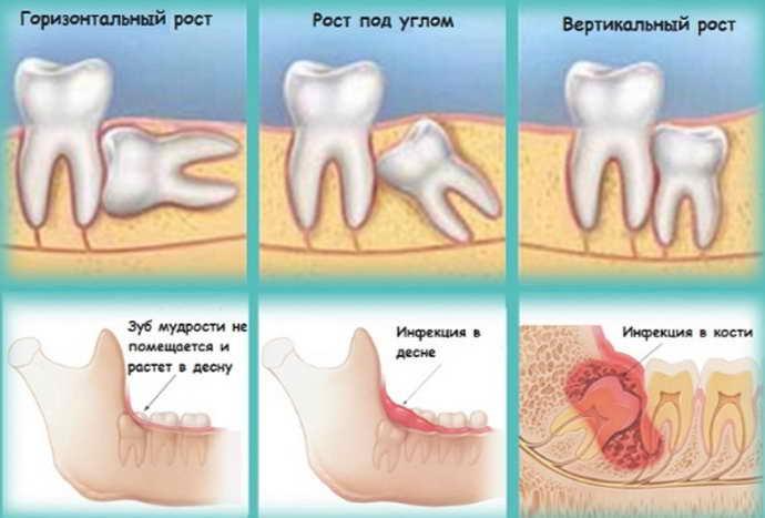 Противопоказания к удалению зубов мудрости