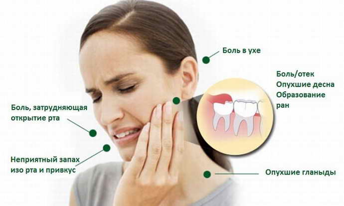 Симптомы при прорезывании зуба мудрости