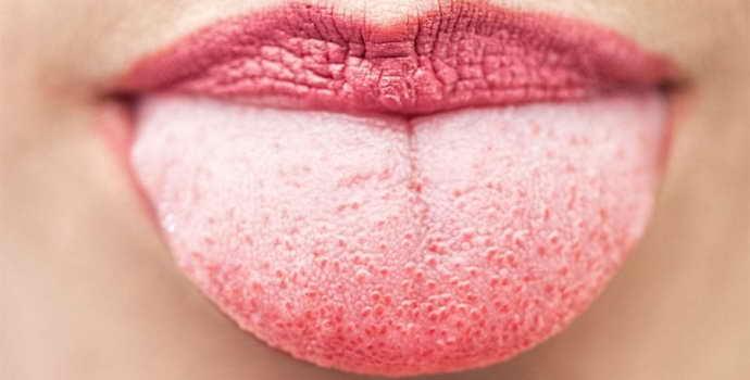 Белый налет на языке боль в животе