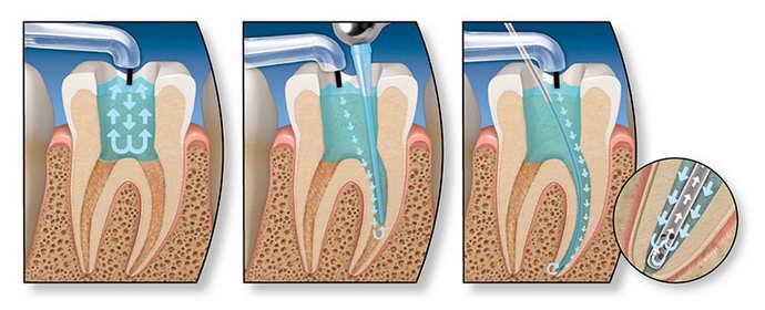 болит запломбированный зуб