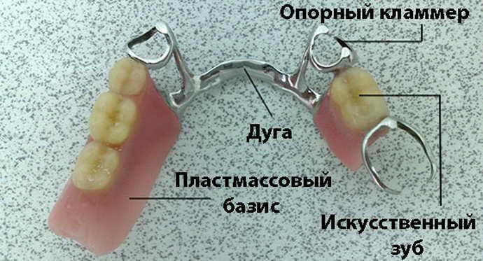 Конструкция бюгельного протеза