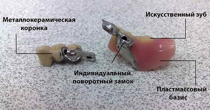 из чего состоит бюгельный протез