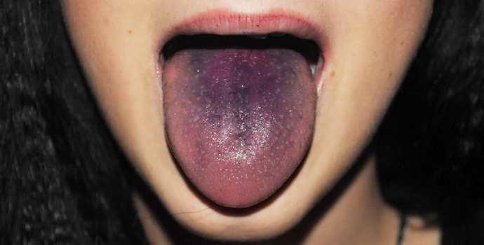 Черный налет на языке у взрослых: причины. Почему на языке черный налет, что это значит и как лечить