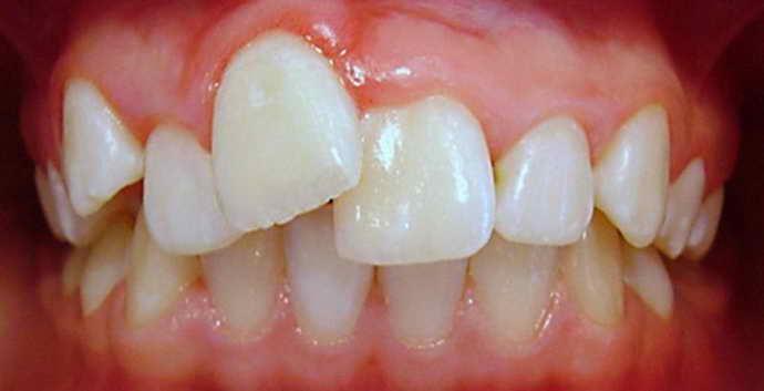 Присутствует большая скученность зубов и лингвальные брекеты
