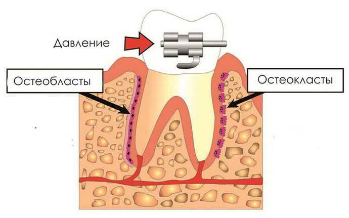 внутренние брекеты на зубы