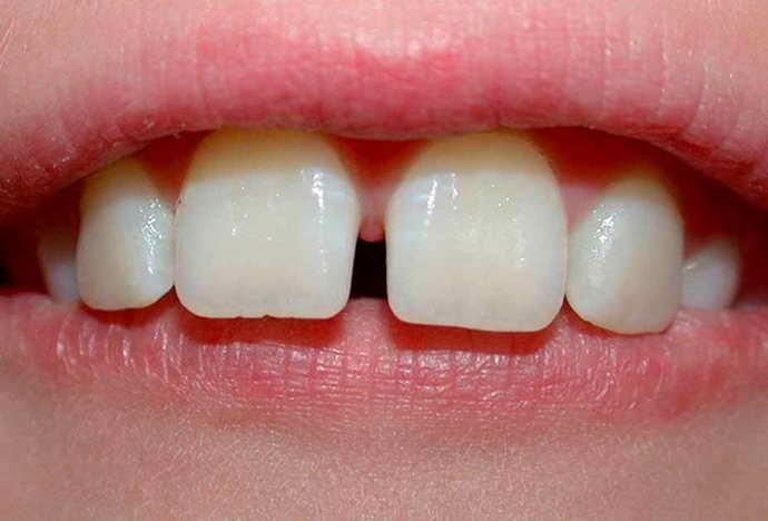 Уменьшить зазоры между зубами