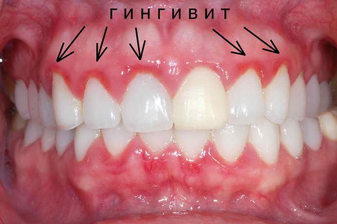 гингивит и нейлоновый зубной протез