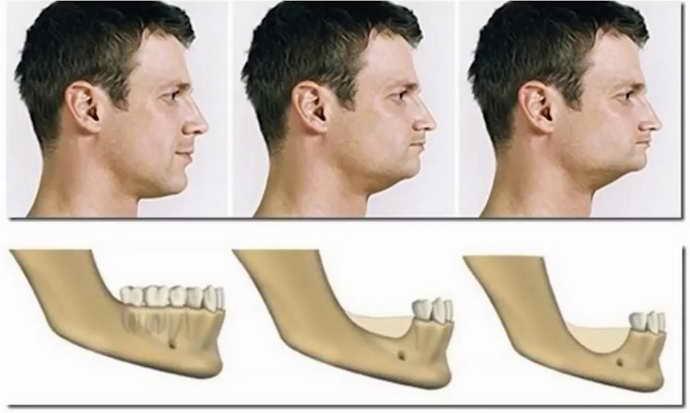 нейлоновый зубной протез при атрофии костной ткани