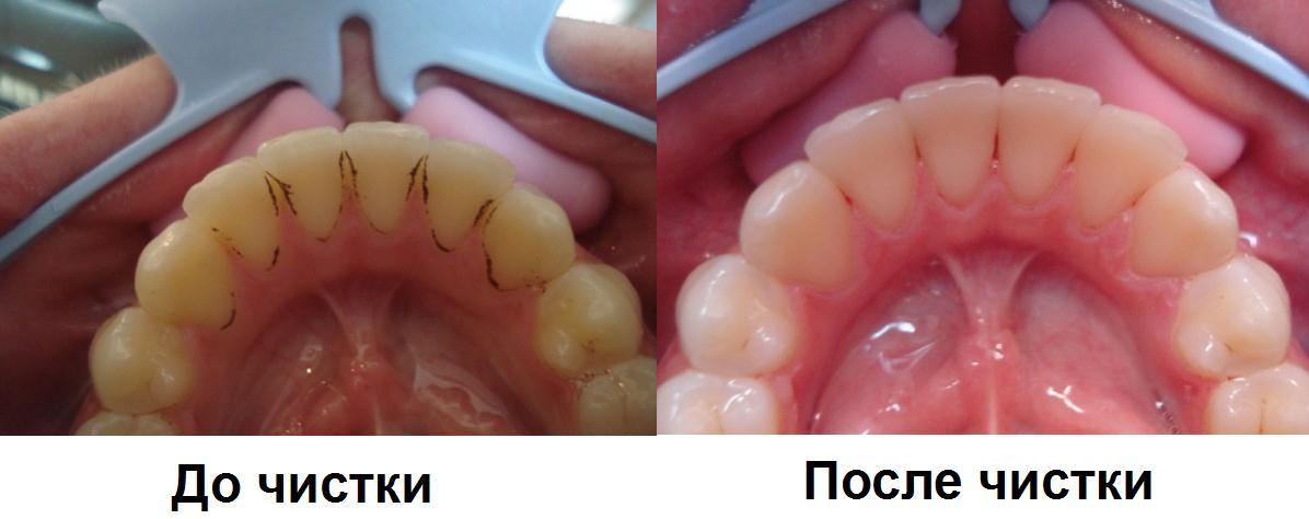 Устранение зубных отложений при пародонтите