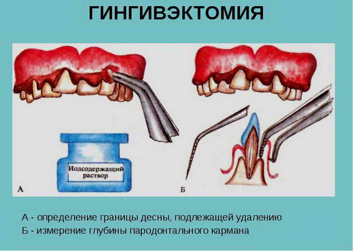 Гингивэктомия при пародонтите