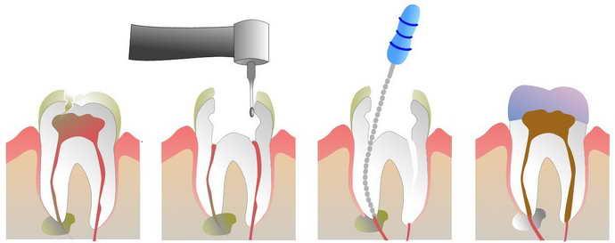 Алгоритм пломбирования зубов