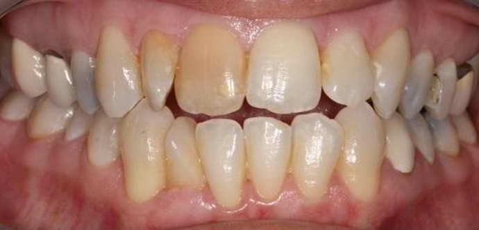 лечение зубов пломбированием