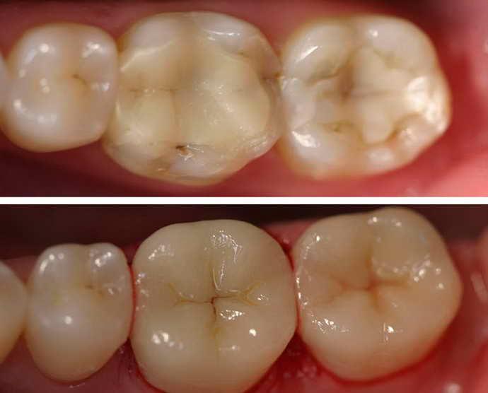 Пломбирование зубов при помощи композитных материалов