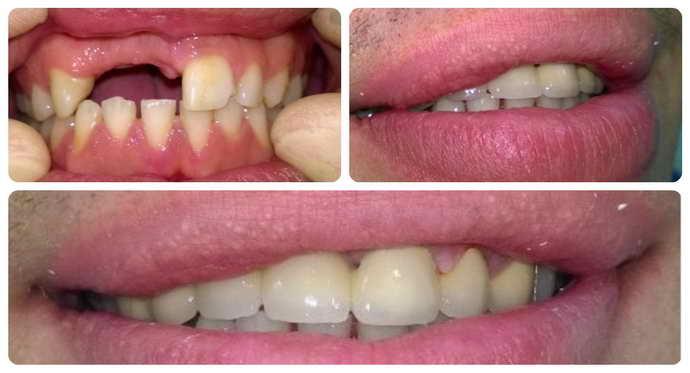 Съемные зубные протезы могут применяться