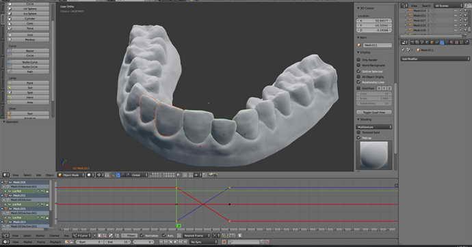 план хирургического вмешательства на основе 3D-модели верхней челюсти