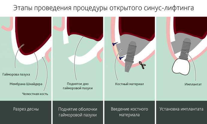 Наращивание кости при помощи открытого синус лифтинга