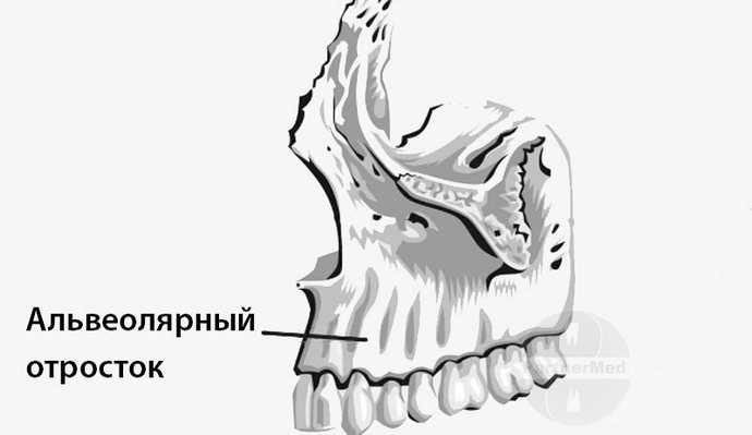 Индивидуальные особенности строения верхней челюсти