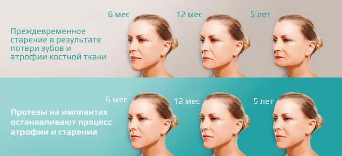 причиной истончения альвеолярного отростка, являются возрастные изменения