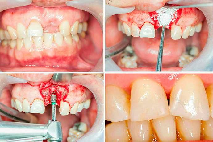 Обследование ротовой полости и верхней челюсти
