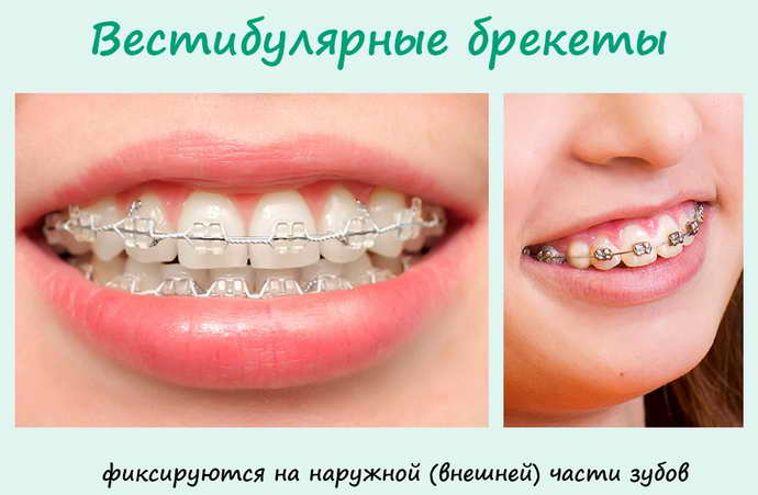 Виды брекет-систем по ориентации на зубах